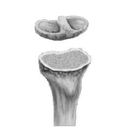 Tibia Removed