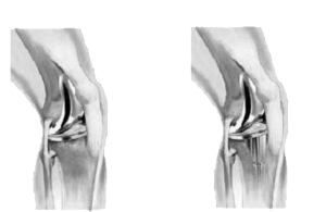 Types of Knee Implants